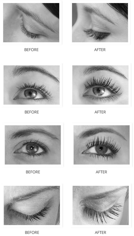 Flash Eyelash Growth Serum Before & After Photos